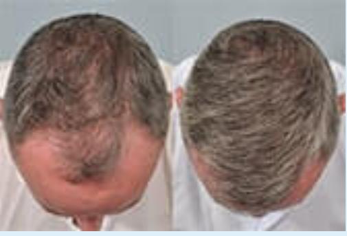 Ultra Hair System - palsu - efek samping - bahaya - penipuan