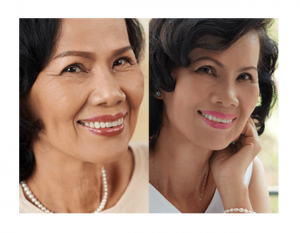 Noia Derm - Indonesia - testimoni - forum - amankah - yang asli