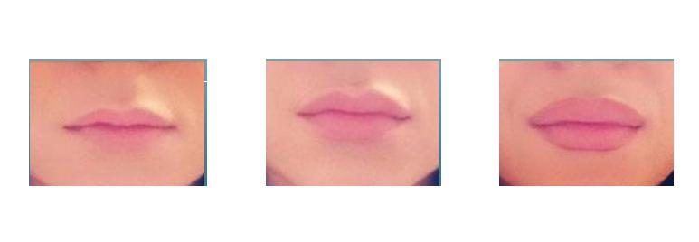 City Lips - sản phẩm có tốt không? Là thuốc gì? Có hiệu quả không? Original